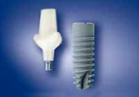 dental implants Ankylos