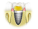dental implantation
