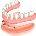Fixing a lower denture with four dental implants