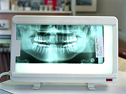 dental implant, preparing for implantation