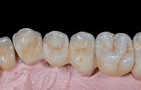Tooth replacement with a zirconium-oxide frame